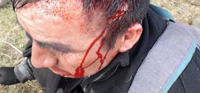 Operativo policial en Victoria deja a comunero mapuche herido de bala en la cabeza